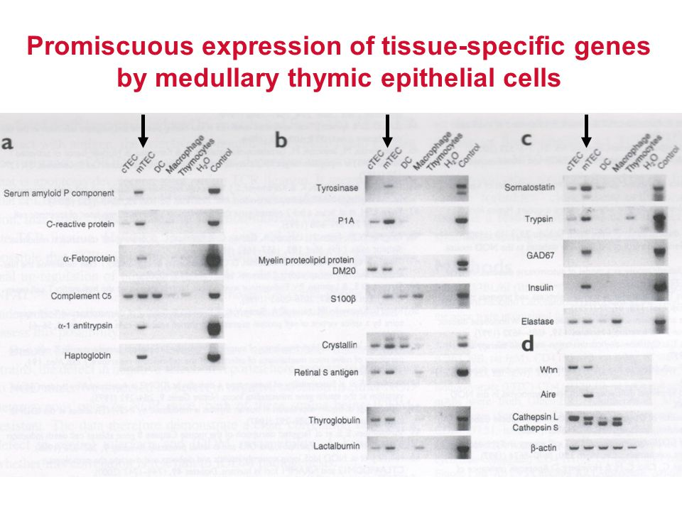 Promiscuous expression of tissue-specific genes by medullary thymic epithelial cells