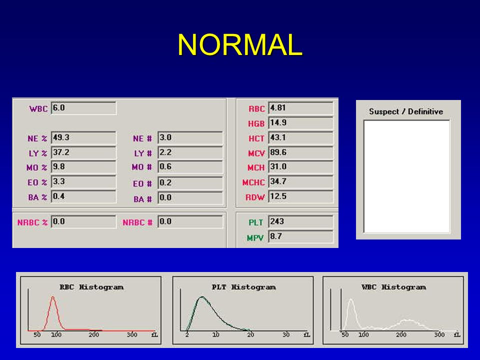 NORMAL This is an example of a normal CBC….no flags or abnormal histograms.