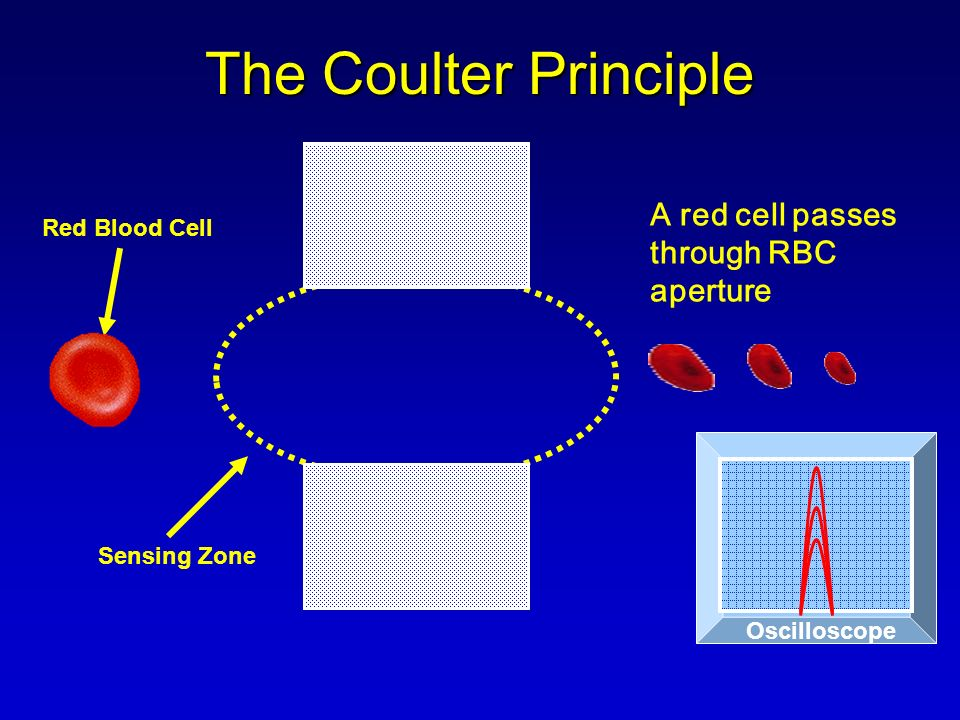 The Coulter Principle A red cell passes through RBC aperture