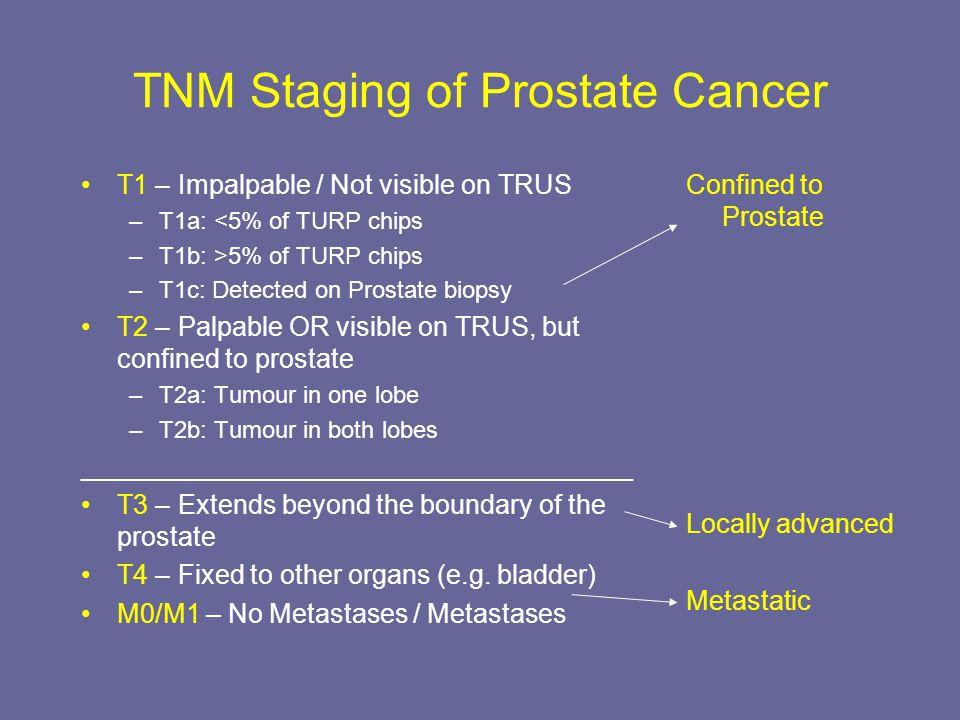 prostate adenocarcinoma tnm prosztata betegek étrendje