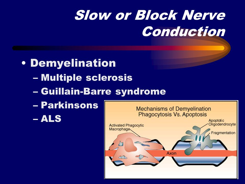 Slow or Block Nerve Conduction