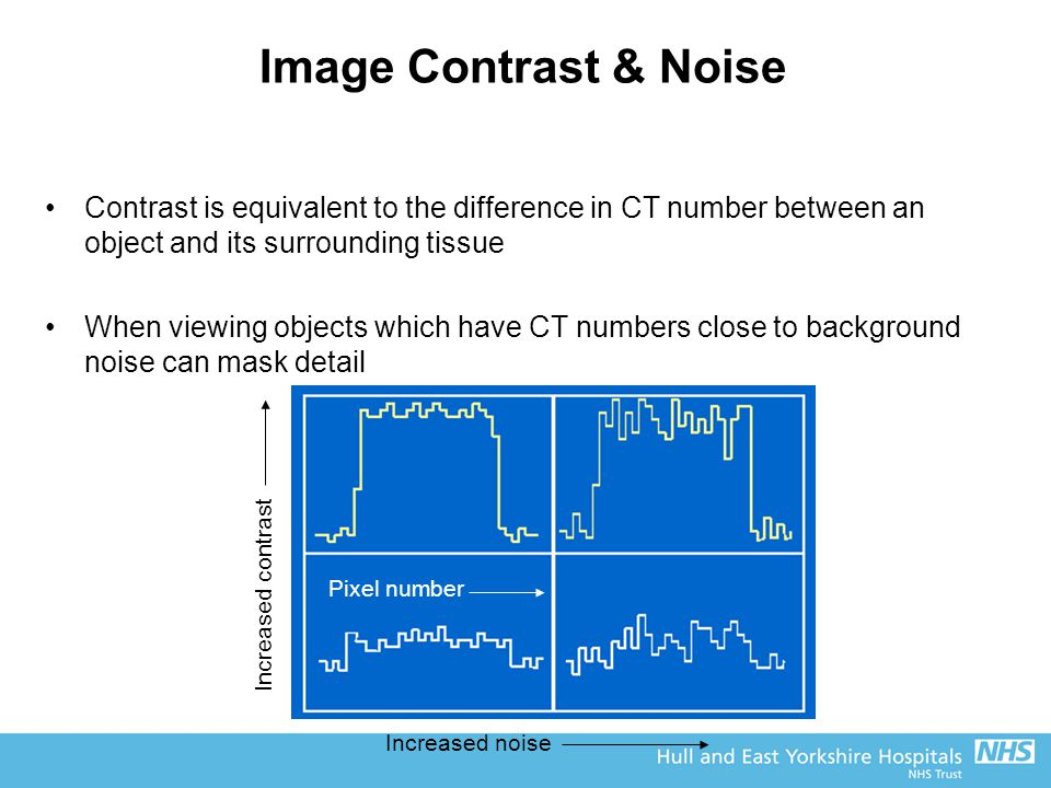 Image Contrast & Noise Contrast is equivalent to the difference in CT number between an object and its surrounding tissue.