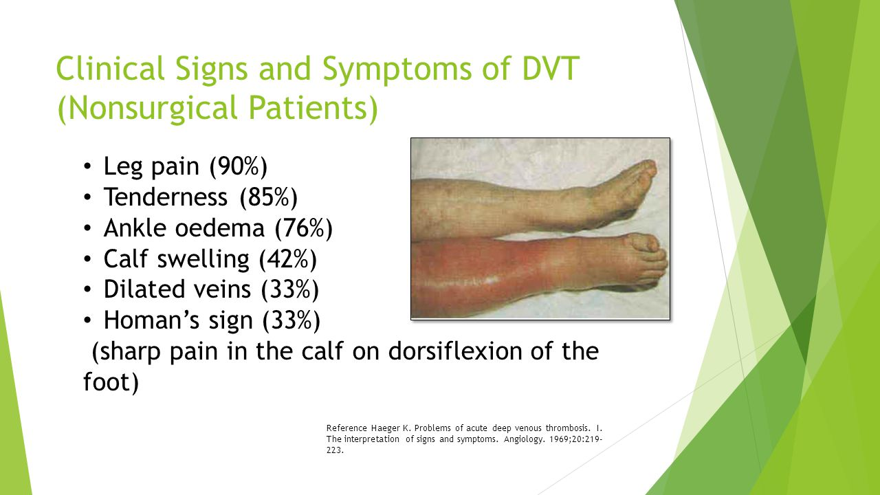Clinical Signs and Symptoms of DVT (Nonsurgical Patients)