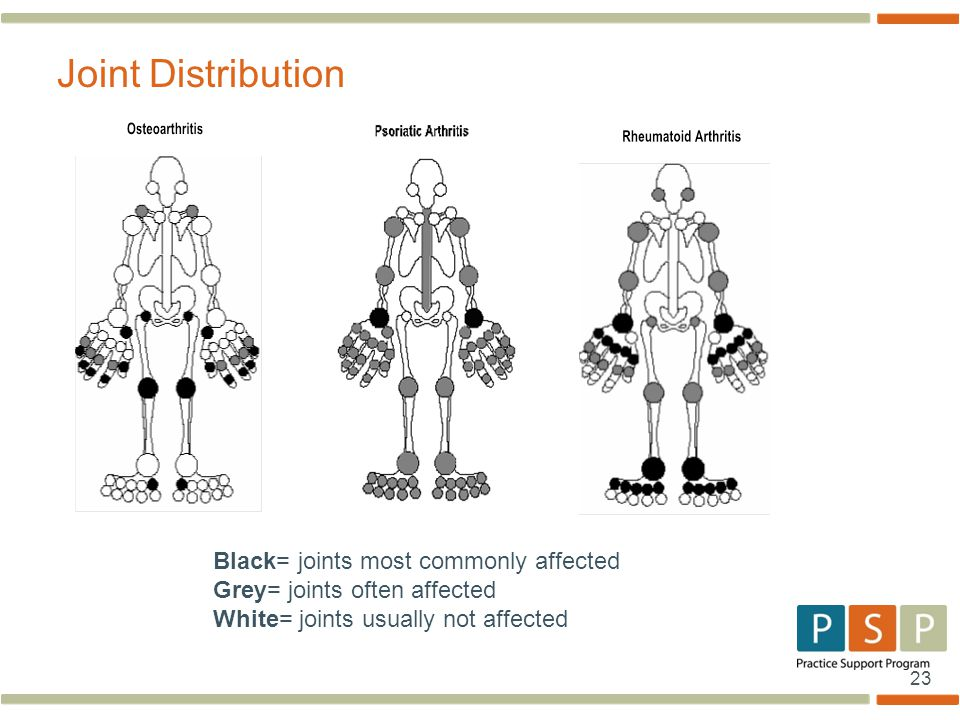 Joint Distribution Black= joints most commonly affected