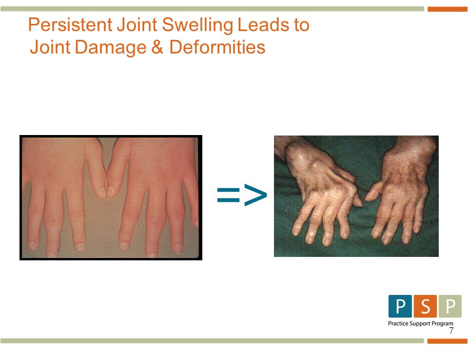Persistent Joint Swelling Leads to Joint Damage & Deformities