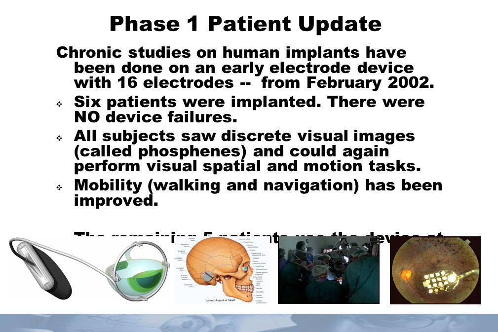 Phase 1 Patient Update Chronic studies on human implants have been done on an early electrode device with 16 electrodes -- from February 2002.