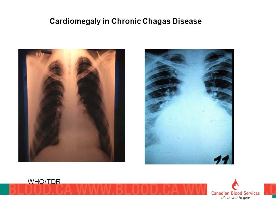 Cardiomegaly in Chronic Chagas Disease