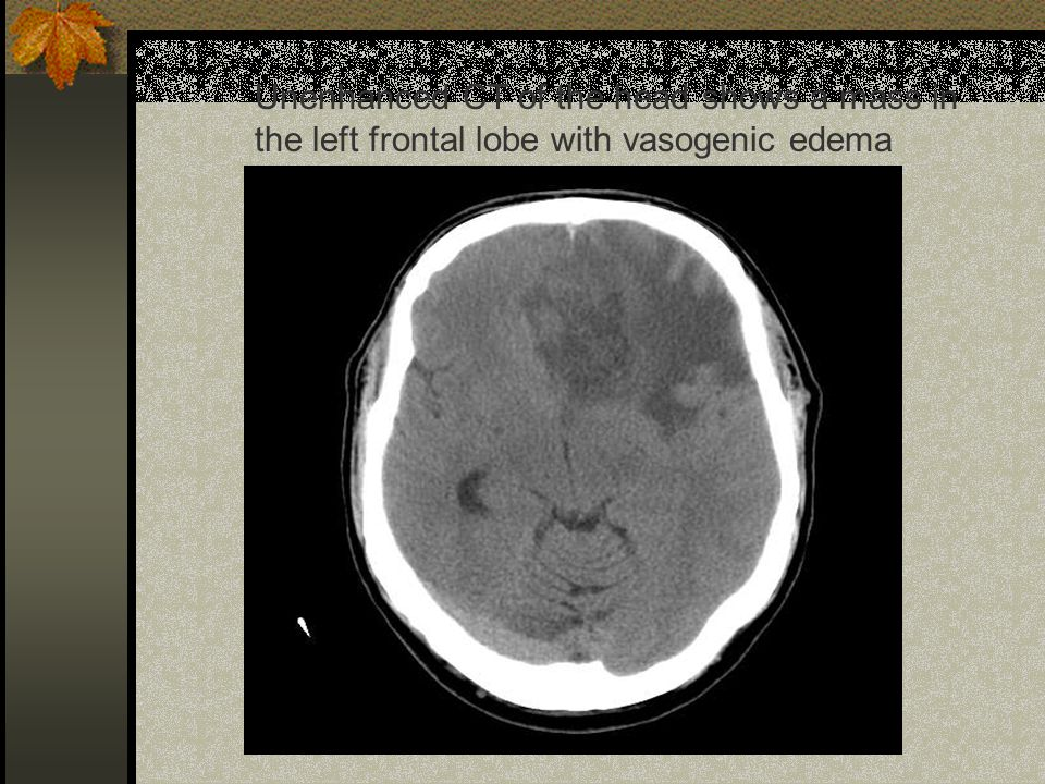 Unenhanced CT of the head shows a mass in the left frontal lobe with vasogenic edema