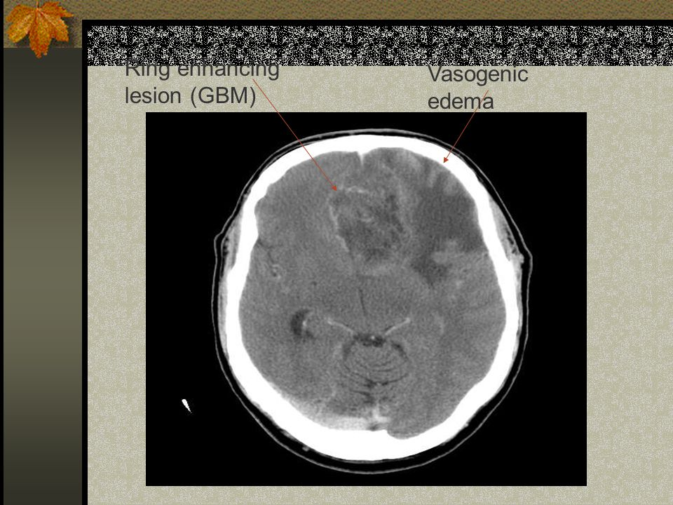 Ring enhancing lesion (GBM)