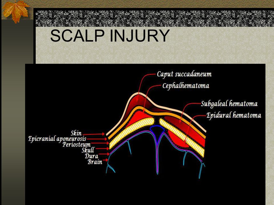 SCALP INJURY