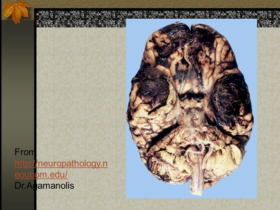 From http://neuropathology.neoucom.edu/