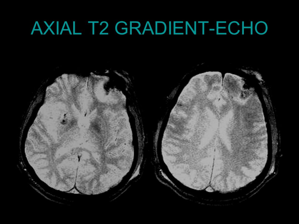 AXIAL T2 GRADIENT-ECHO