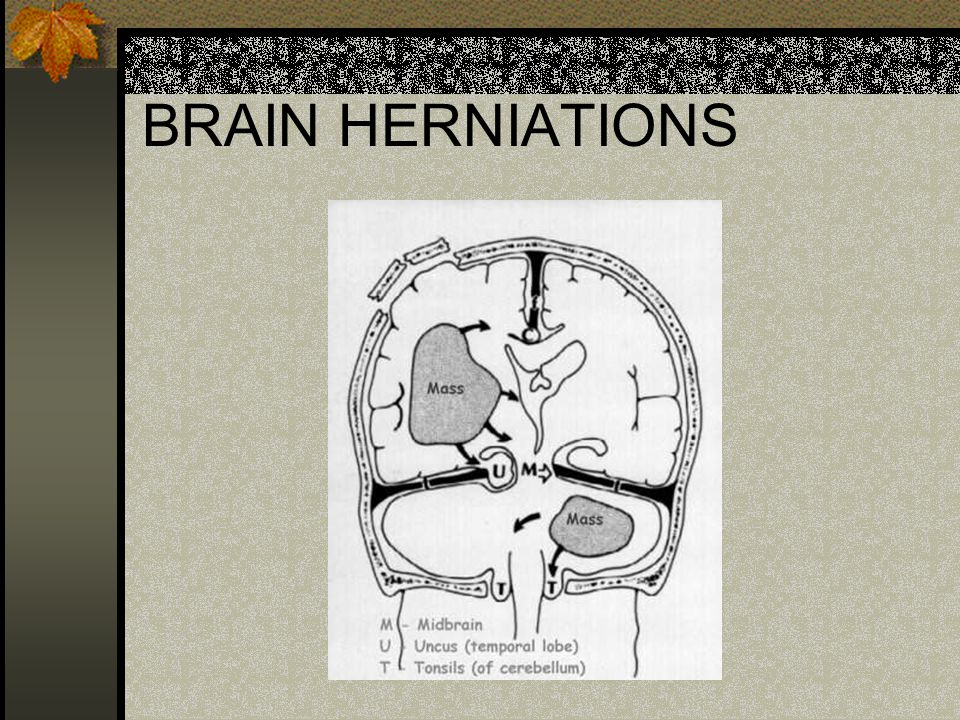 BRAIN HERNIATIONS