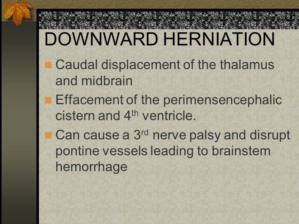 DOWNWARD HERNIATION Caudal displacement of the thalamus and midbrain