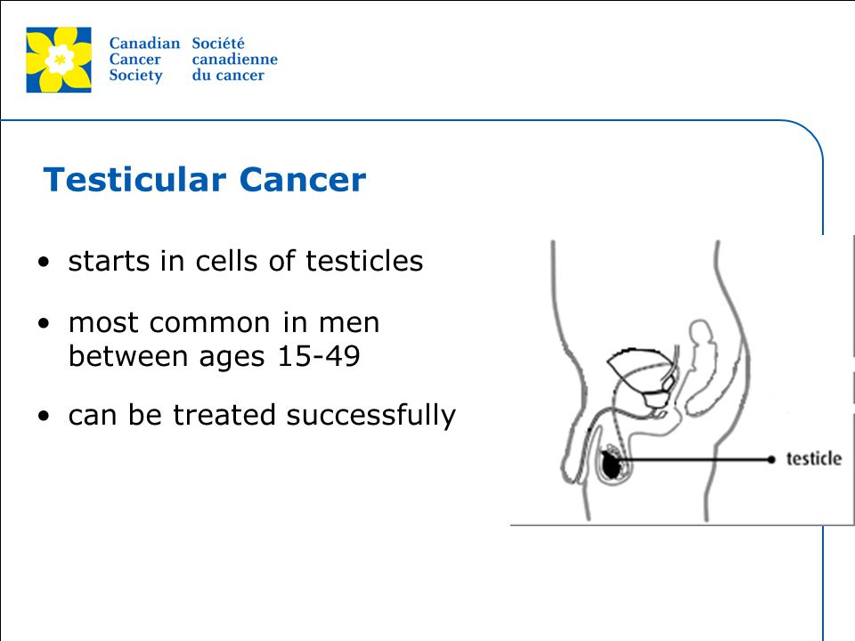 Testicular Cancer starts in cells of testicles
