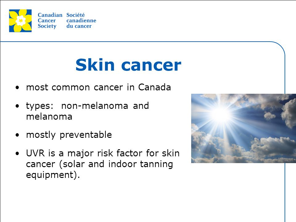 Skin cancer most common cancer in Canada