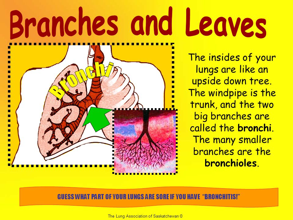 GUESS WHAT PART OF YOUR LUNGS ARE SORE IF YOU HAVE BRONCHITIS!