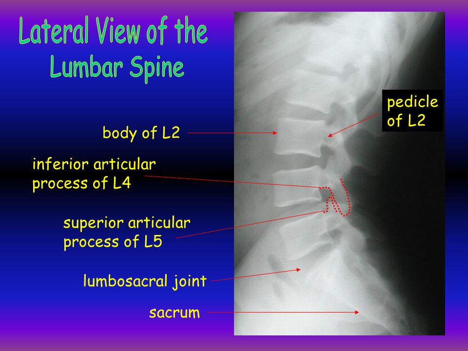 Lateral View of the Lumbar Spine pedicle of L2 body of L2