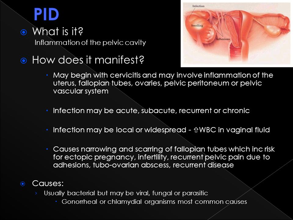 PID What is it How does it manifest Causes: