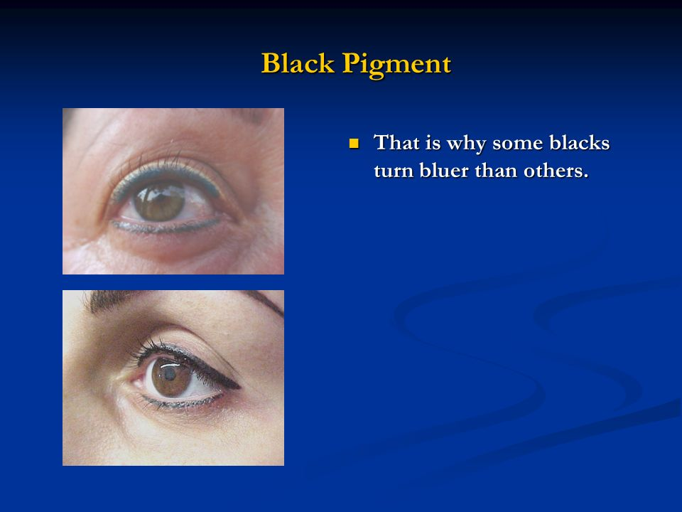 Black Pigment That is why some blacks turn bluer than others.