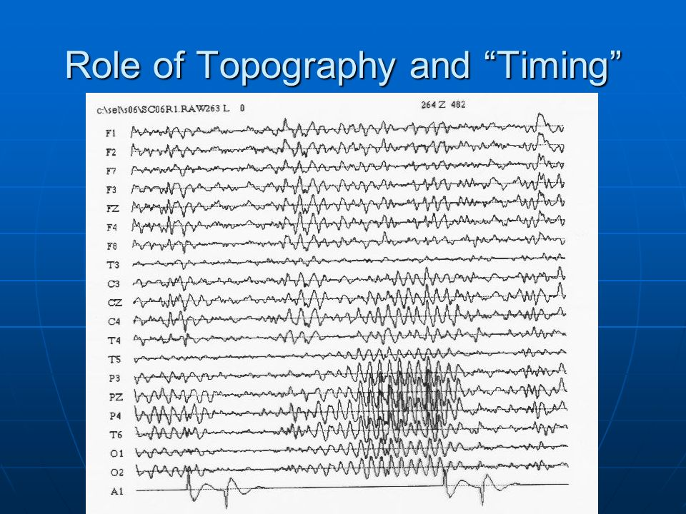 Role of Topography and Timing