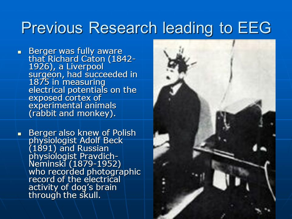 Previous Research leading to EEG
