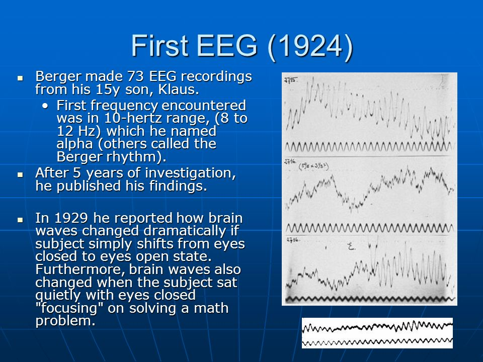 First EEG (1924) Berger made 73 EEG recordings from his 15y son, Klaus.