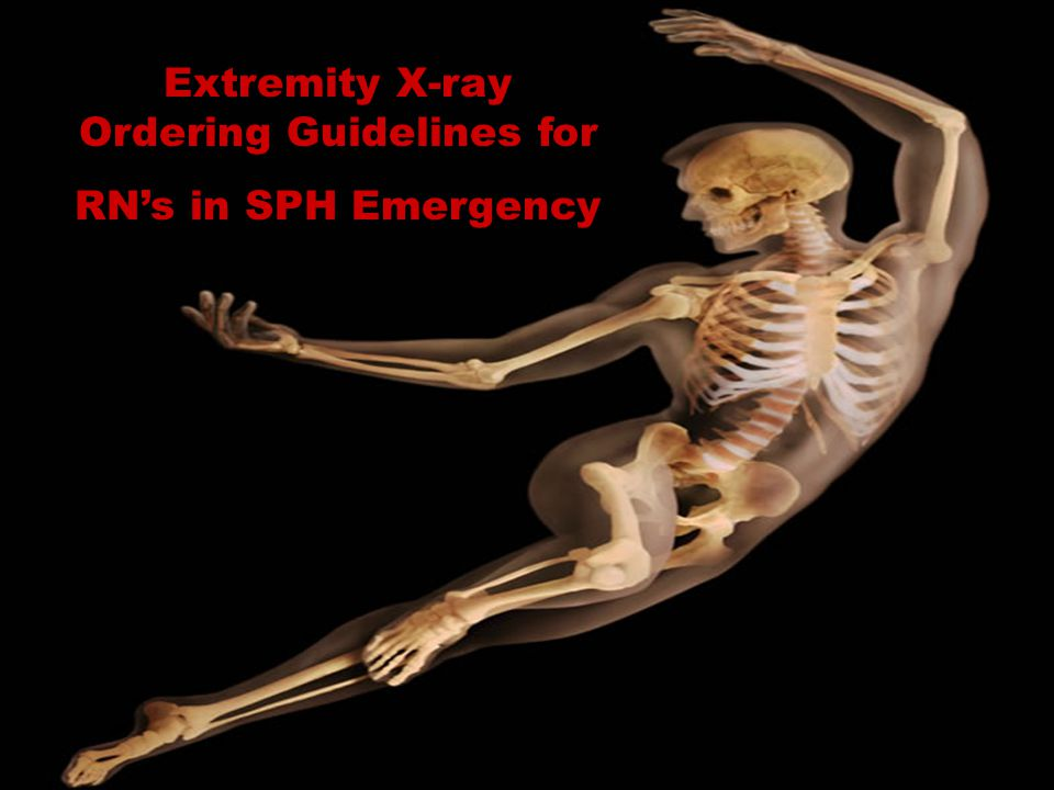 Extremity X-ray Ordering Guidelines for
