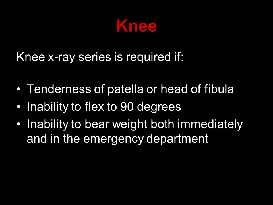 Knee Knee x-ray series is required if: