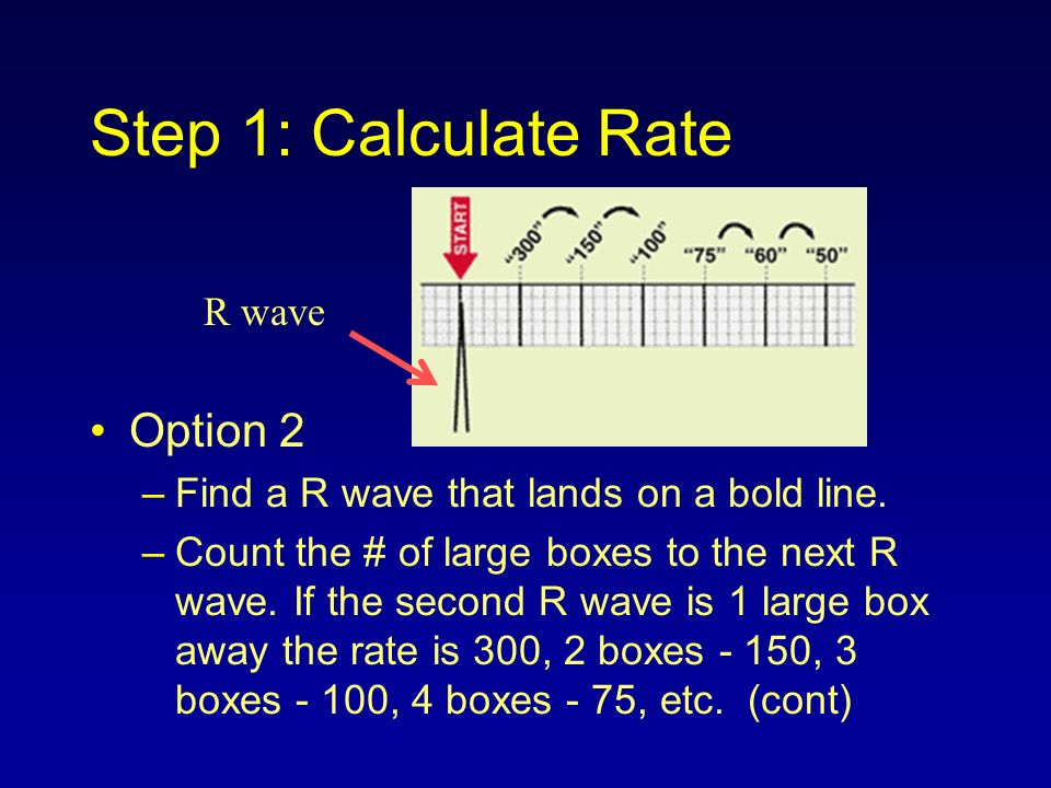 Step 1: Calculate Rate Option 2 R wave