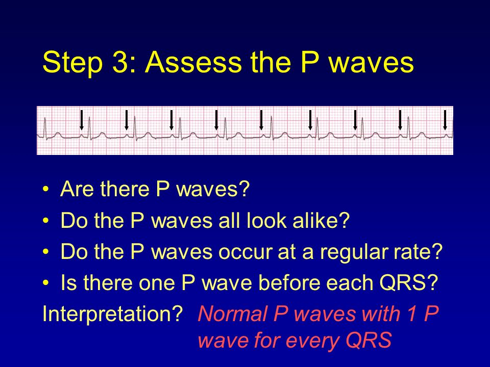 Step 3: Assess the P waves