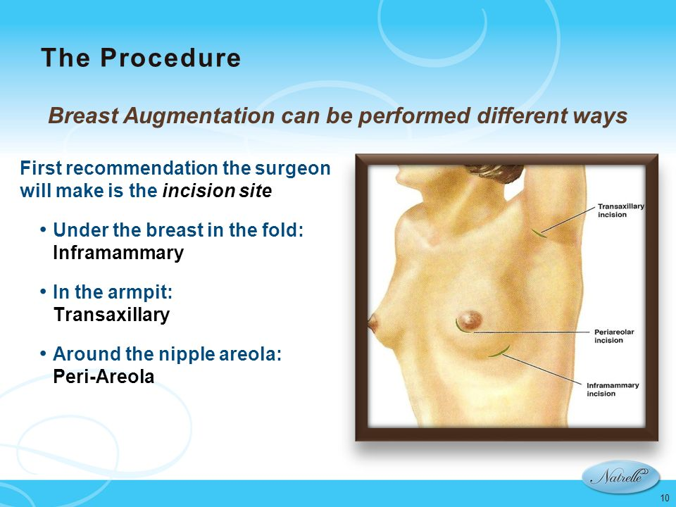 Breast Augmentation can be performed different ways
