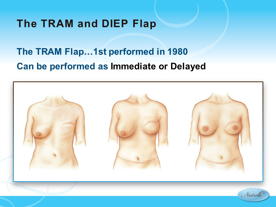 The TRAM and DIEP Flap The TRAM Flap…1st performed in 1980 Can be performed as Immediate or Delayed