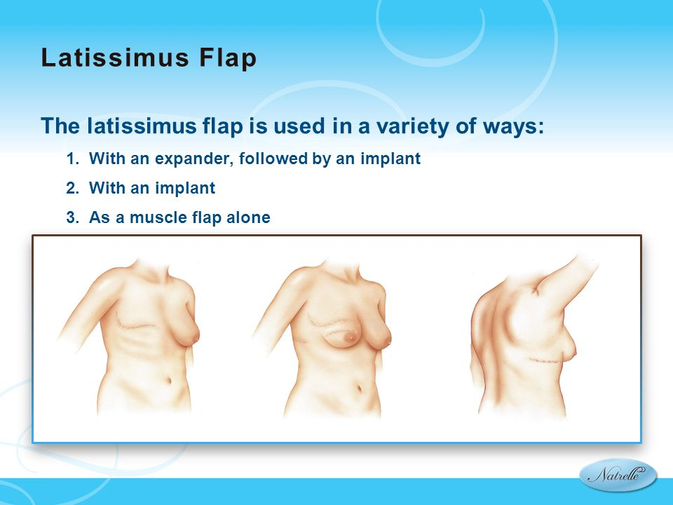 Latissimus Flap The latissimus flap is used in a variety of ways: