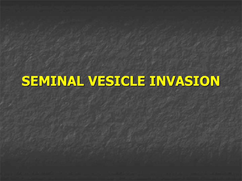 SEMINAL VESICLE INVASION