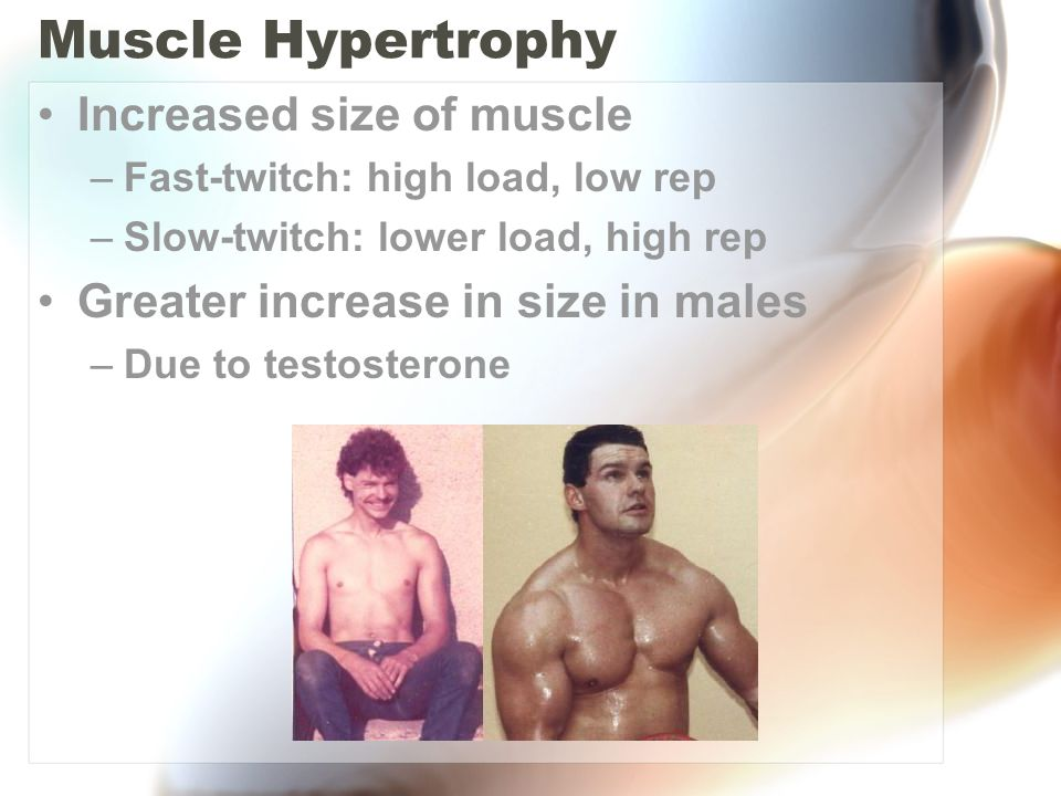 Muscle Hypertrophy Increased size of muscle