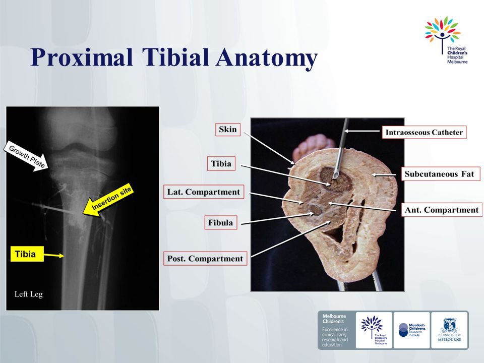 Proximal Tibial Anatomy