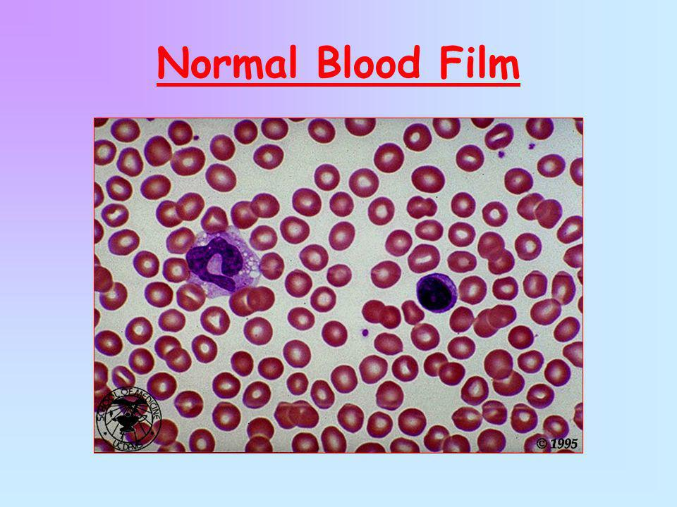 Normal Blood Film
