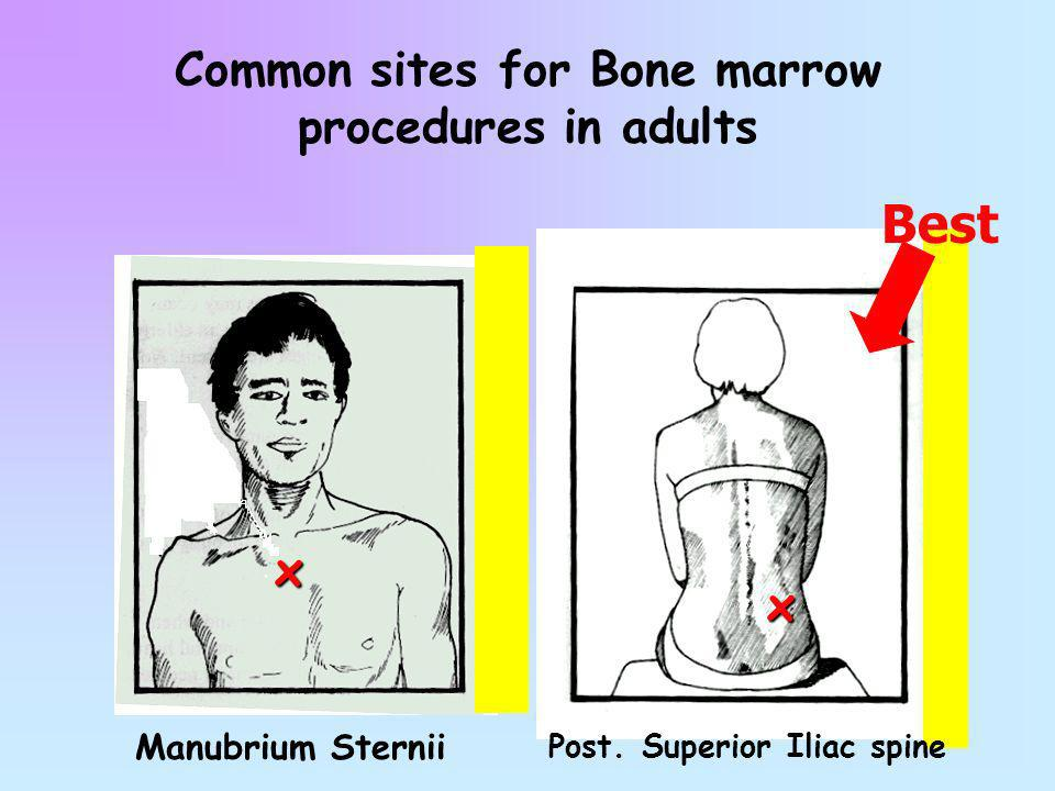 Common sites for Bone marrow procedures in adults
