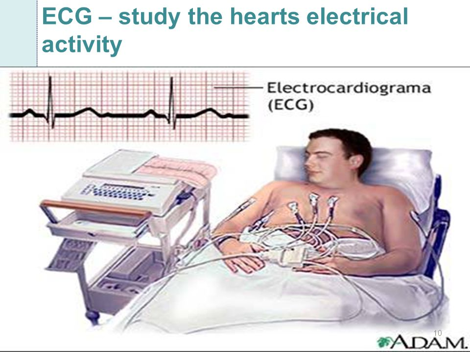 ECG – study the hearts electrical activity
