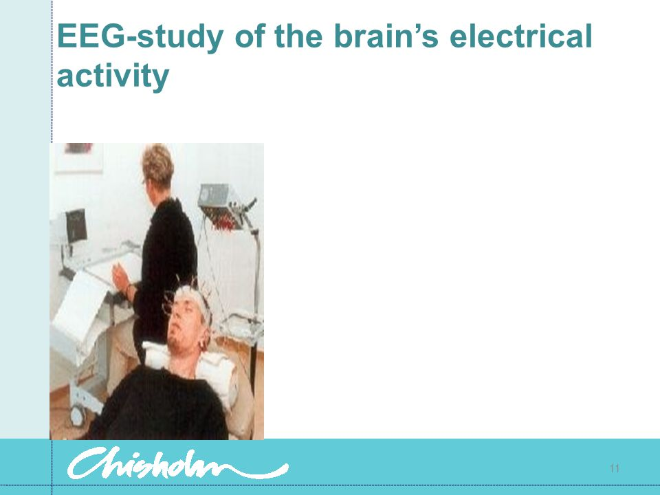 EEG-study of the brain's electrical activity