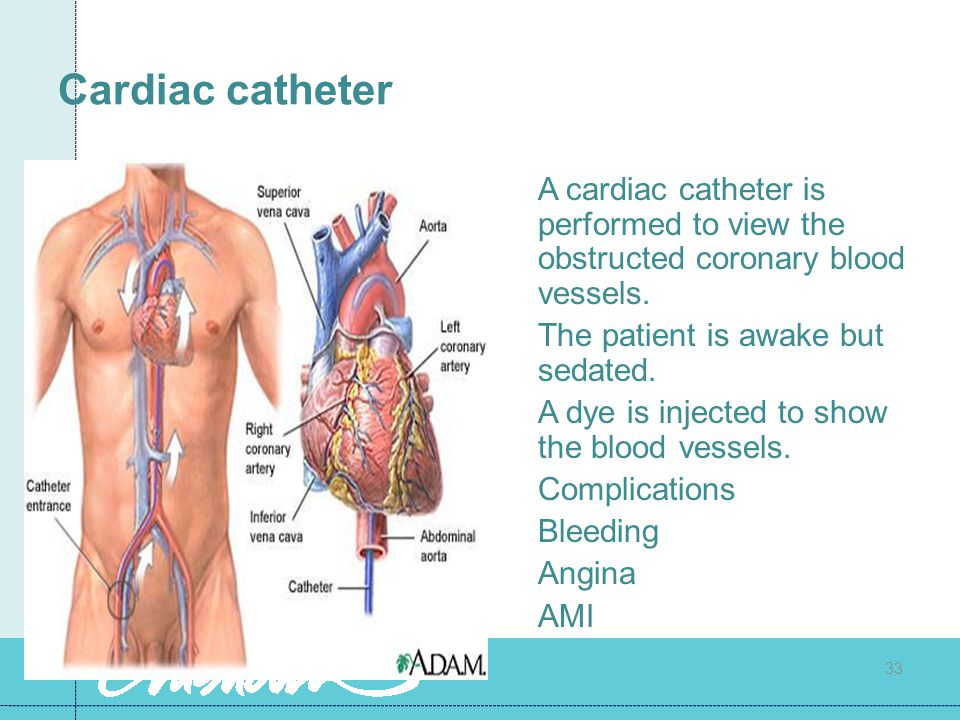 Cardiac catheter A cardiac catheter is performed to view the obstructed coronary blood vessels. The patient is awake but sedated.