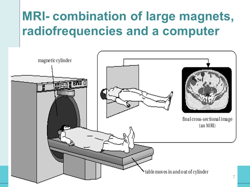 MRI- combination of large magnets, radiofrequencies and a computer
