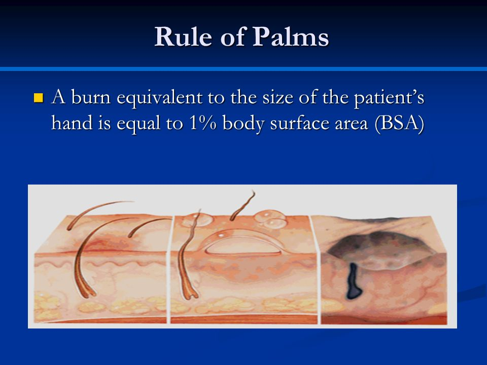 Rule of Palms A burn equivalent to the size of the patient's hand is equal to 1% body surface area (BSA)