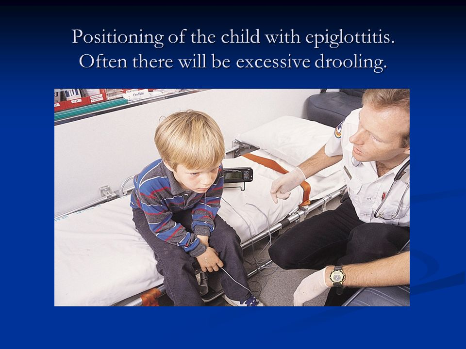 Positioning of the child with epiglottitis