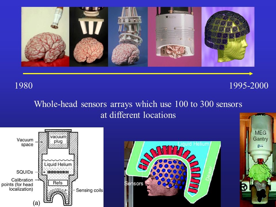 Whole-head sensors arrays which use 100 to 300 sensors