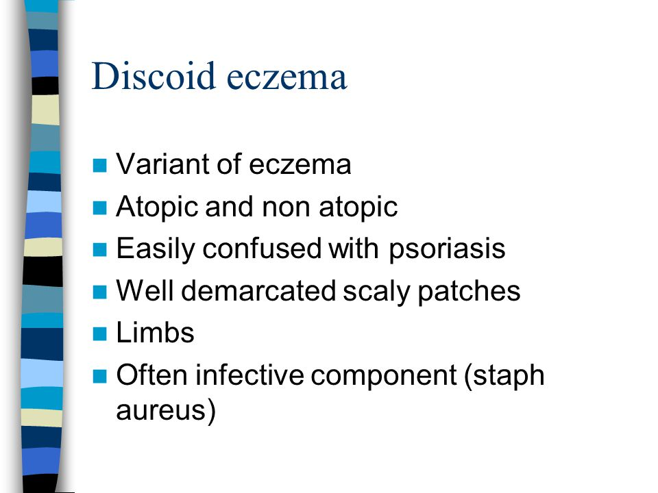 Discoid eczema Variant of eczema Atopic and non atopic