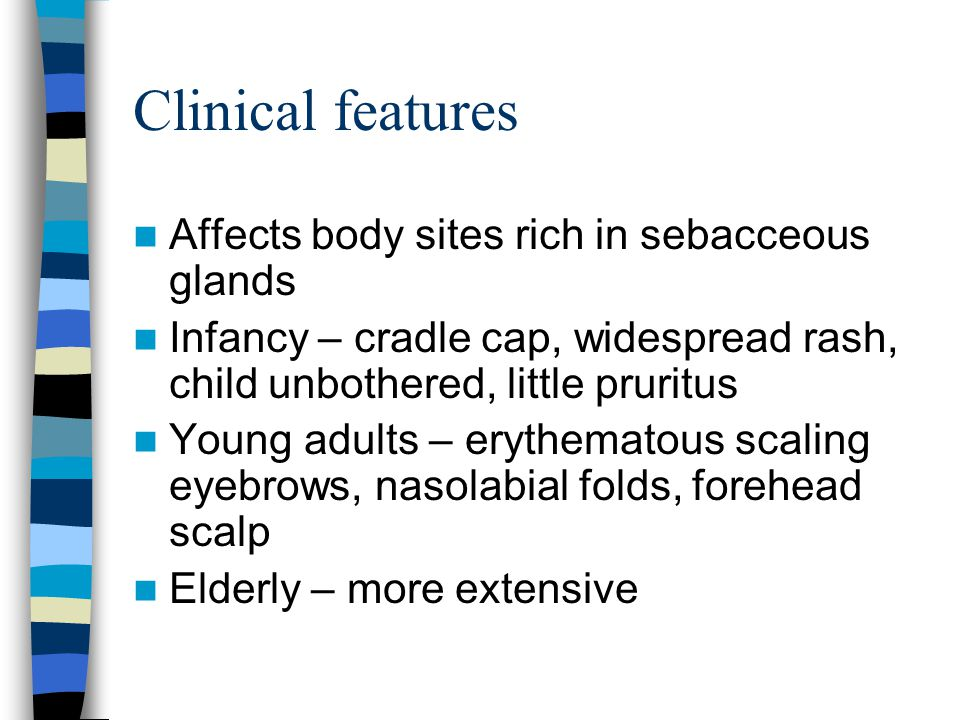 Clinical features Affects body sites rich in sebacceous glands