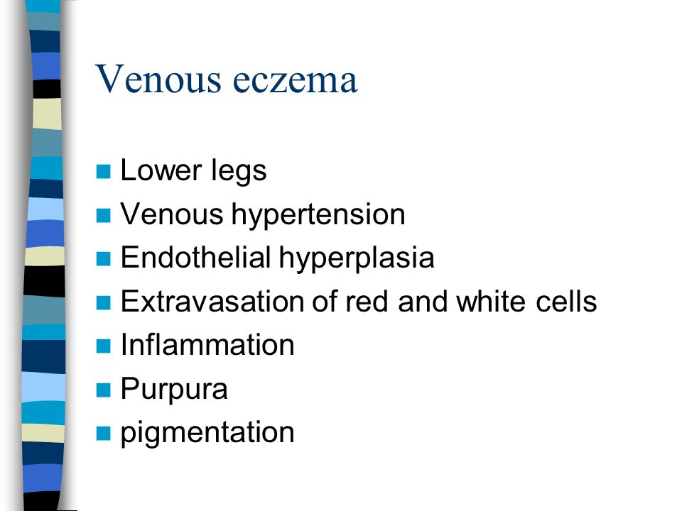 Venous eczema Lower legs Venous hypertension Endothelial hyperplasia
