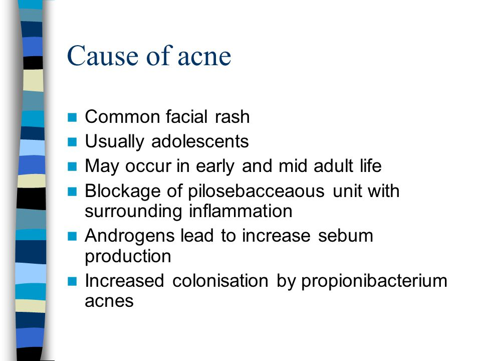Cause of acne Common facial rash Usually adolescents